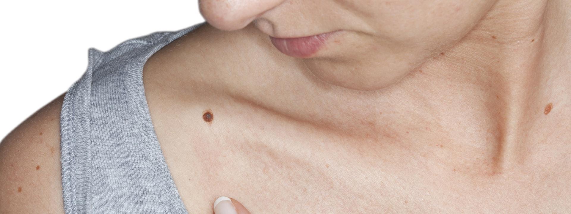 Skin Cancer Dermatology Specialist Bluegrass Dermatology